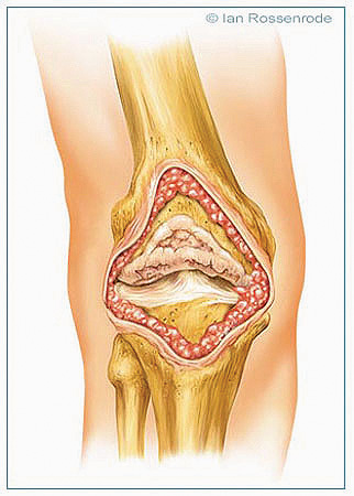 knee medical illustration