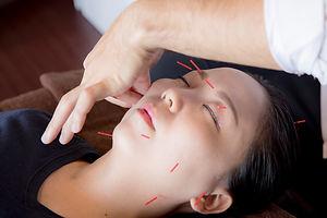 お顔への治療・施術