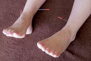 両足・両腕の鍼