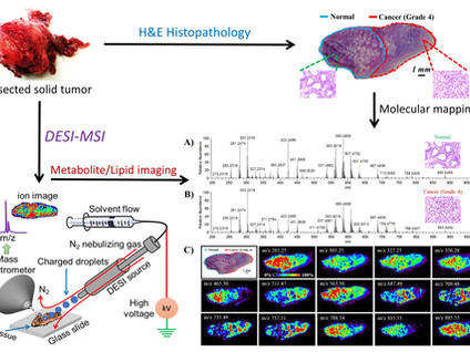 Clinical Mass Spectrometry: Imaging Tissue Metabolites and Lipids for Cancer Diagnosis