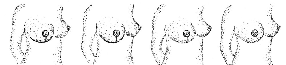 técnicas de mamoplastia de redução