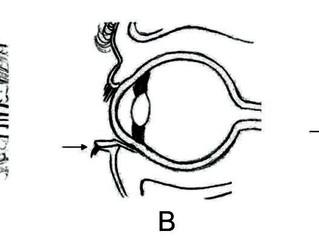 Blefaroplastia - intercorrências no pós-operatório