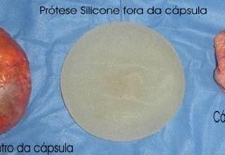 Contratura capsular