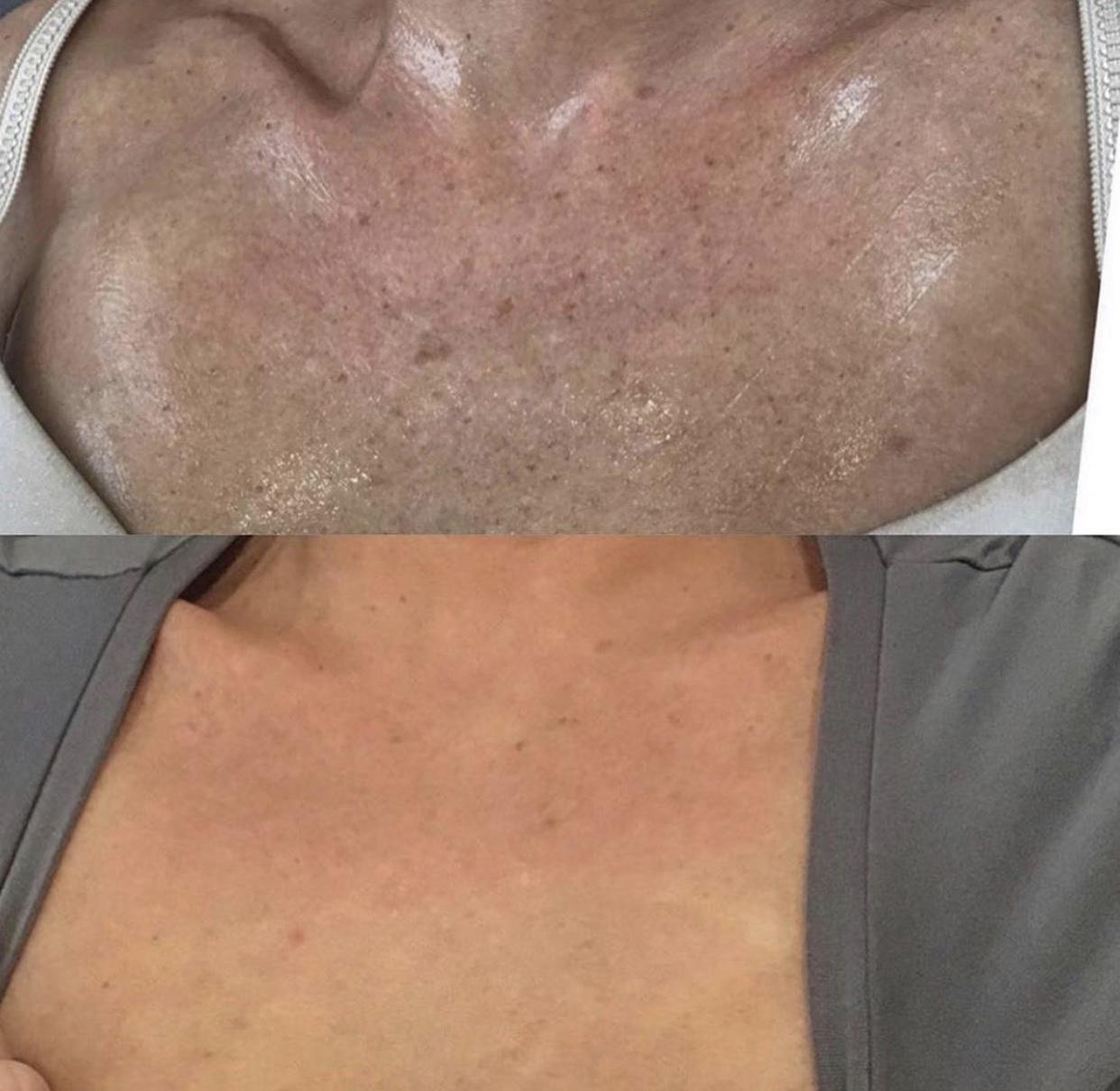 photofacial face + neck + chest