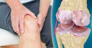 Osteoartharitis
