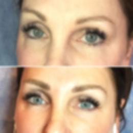 Une fois guéri, le maquillae permanent des sourcils donne un résultat trés subtil et naturel