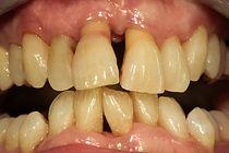 Malattia parodontale (piorrea)