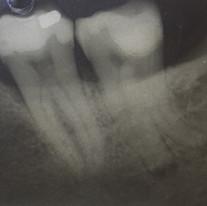 Endodonzia di dente necrotico