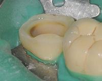 Intarsio di un molare