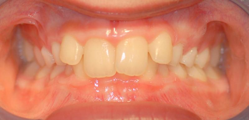 Teraia ortodontica fissa