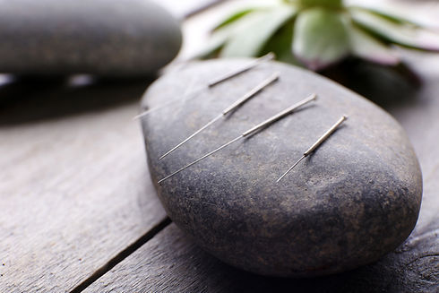 Needle for acupuncture on spa stones on