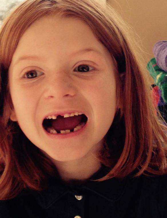 g'daughter teeth 1.jpg