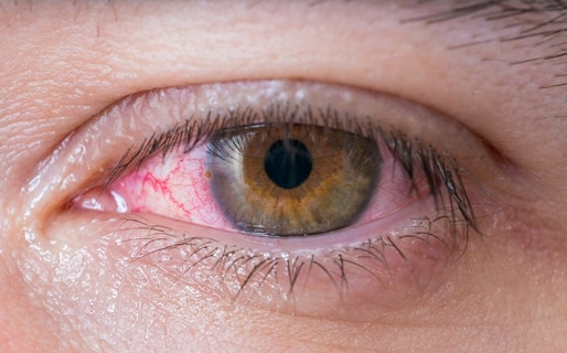 Common Causes and Types of Red Eyes