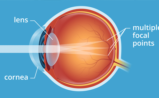 7 Facts You Should Know About Astigmatism