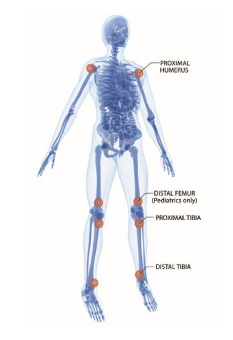 Source: https://www.teleflex.com/usa/en/clinical-resources/ez-io/index