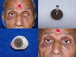 2 Custom Ocular Prosthesis with Iris Pai