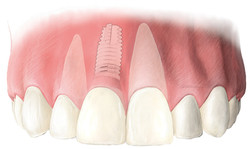Implant dentaire et pose immédiate