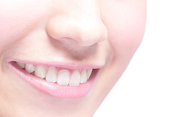 implants dentaires et bridge