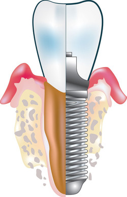 Implant dentaire clinique ermont