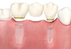 Bridge sur implant dentaire