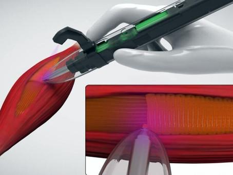 Ручной 3D биопринтер позволит напечатать мыщцы человека