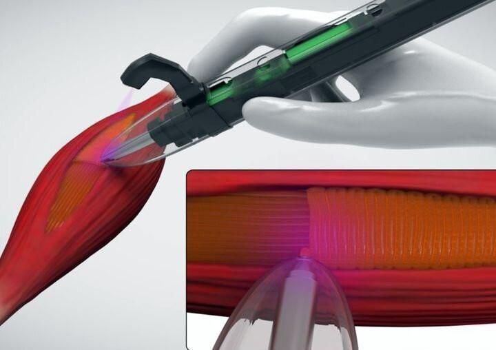 Ручной принтер для восстановления мышечной ткани. Автор фото: ACS