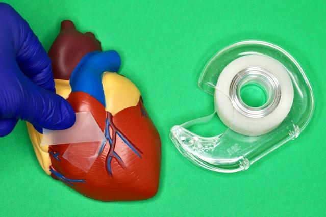 Адгезивный пластырь поможет в лечении внутренних органов