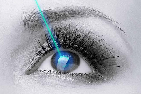 bw-eye-aqua-laser-330x220_1.5x.jpg