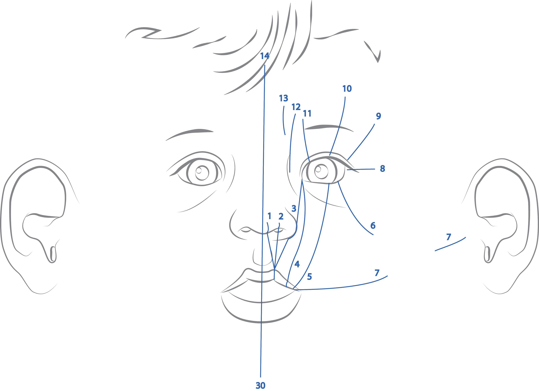 Tessier Diagram