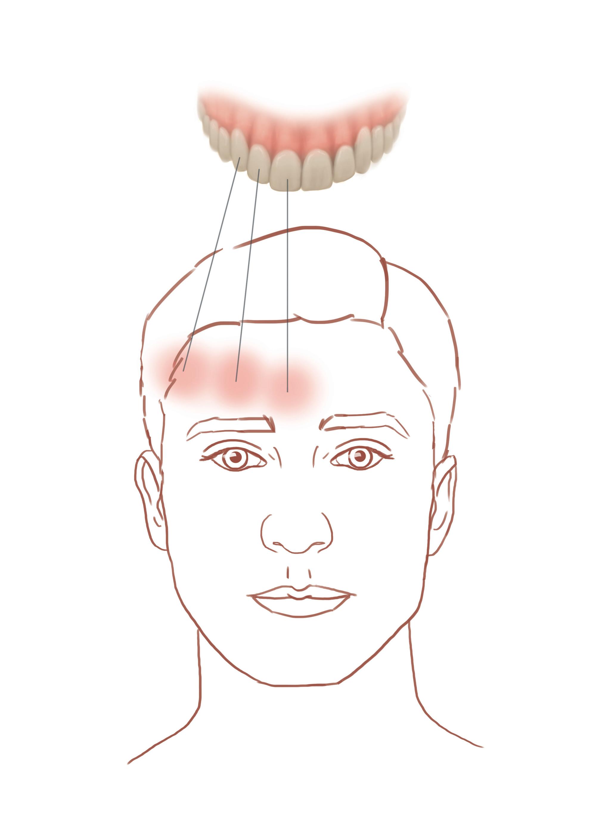 Migraine Tooth Pain