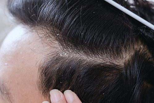 Shampoo de Cetoconazol.