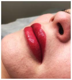 Usta permanentne
