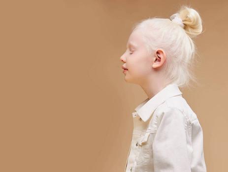 ¿Qué es realmente el albinismo?