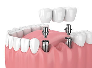 Implant-Supported Bridges at New Hope Family Dentistry in New Hope AL
