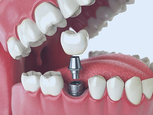 Dental Implants at New Hope Family Dentistry in New Hope AL