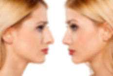 Alternatives-to-Rhinoplasty.jpg