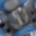 Dentist Chepstow | Silver Amalgam Filling Back Tooth Portwall Dental Surgery Chepstow