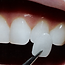 Dentist Chepstow | Invisible Braces (Invisalign) Portwall Dental Surgery Chepstow