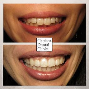 uneven front teeth