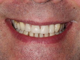 Invisalign Treatment Dentist After