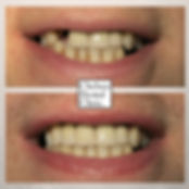 front tooth dental implants