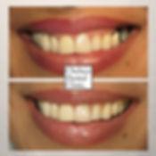 put dental implant in gap