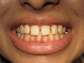 Cosmetic Dentist London Before Photo