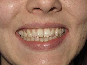 Invisalign Dentist Before Picture