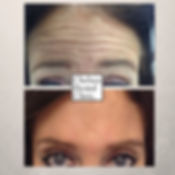 reduce wrinkles on forehead