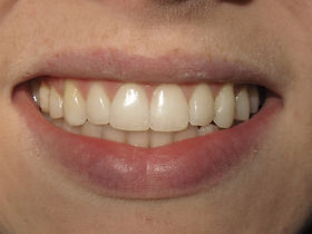 Invisalign Dentist After Picture