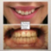 bring down teeth in the gums