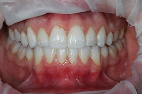 After Invisalign, bonding and whitening