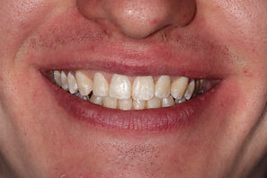 Cosmetic Dentist London After Patient Photo