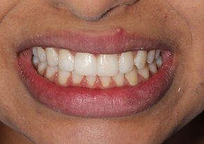 Cosmetic Dentist London After Photo